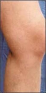 Leg with Vericose Veins